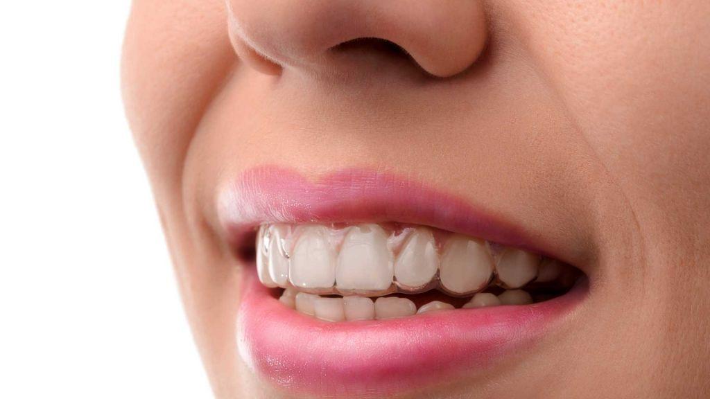 ederico-Campedelli-Dentista-a-Carpi-Invisalign-un-sorriso-perfetto-è-possibile-a-tutte-le-età