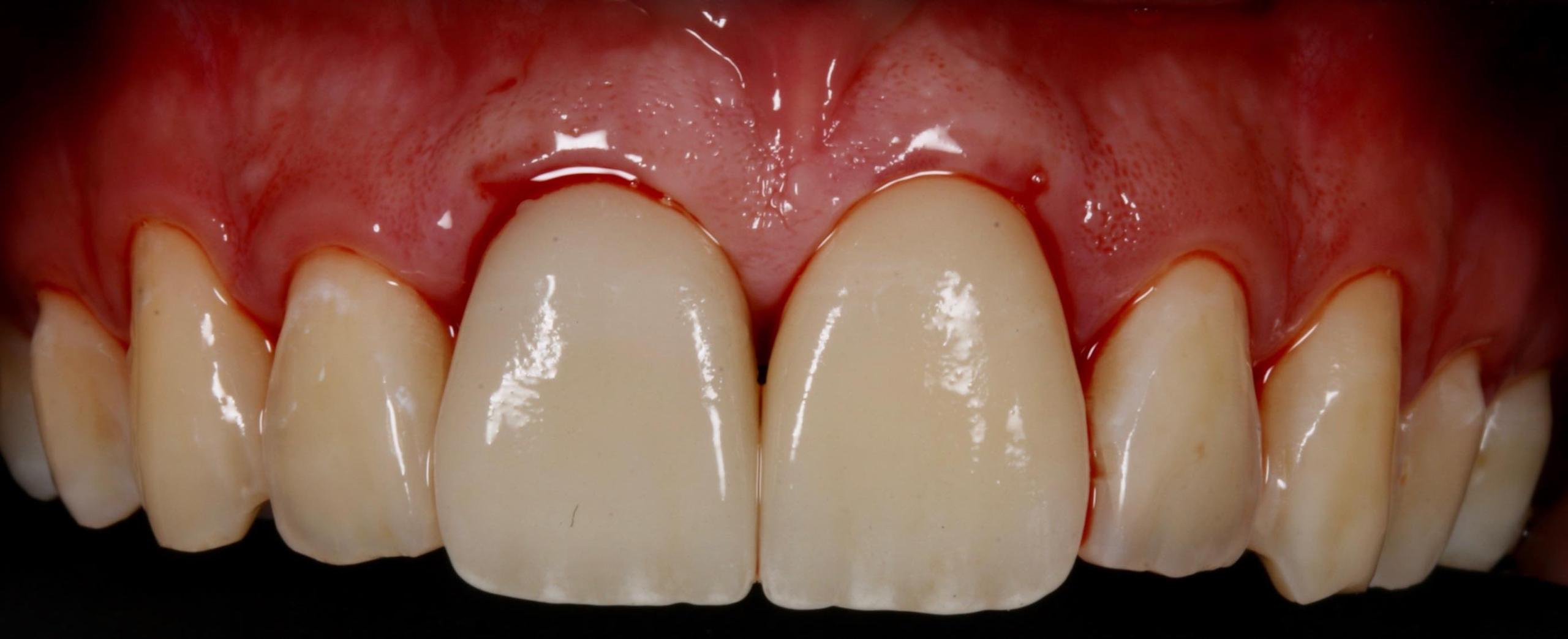 Federico-Campedelli-Dentista-a-Carpi-Faccette-Dentali-estetica-e-struttura-