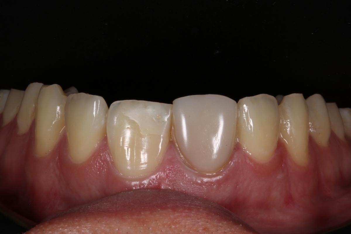 Federico-Campedelli-Dentista-a-Carpi-Faccette-Dentali-estetica-e-struttura-2