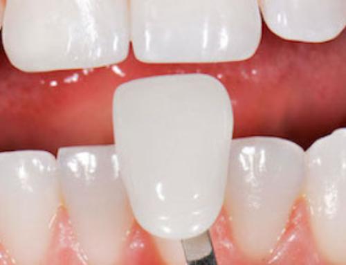 Faccette dentali storia della cosmetica e dell'estetica dentale