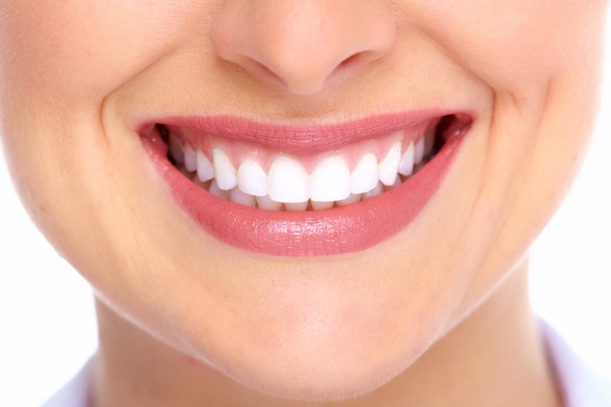 Federico-Campedelli-Dentista-Carpi-Faccette-dentali-storia-della-cosmetica-e-dellestetica-dentale-moderna