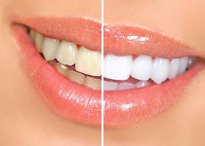 Federico-Campedelli-Dentista-Carpi-Siancamento-dentale-trattamento-sicuro-e-totalmente-indolore-che-dà-risultati-di-grande-soddisfazione-ma-soltanto-a-certe-condizioni-ecco-quqli