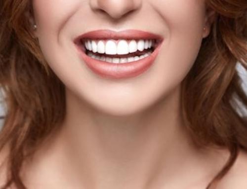 Sbiancamento dentale professionale 6 cose che devi sapere