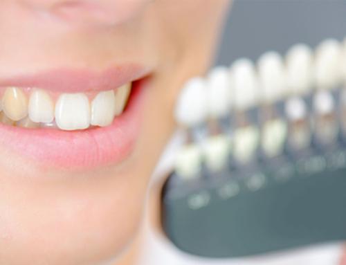 Macchie dentali prevenzione