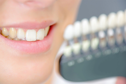 Federico-Campedelli-Dentista-Carpi-Macchie-dentali-prevenzione-macchie-sui-denti-denti-macchiati