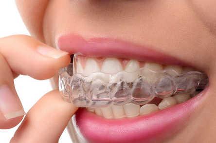 Federico-Campedelli-Dentista-Carpi-Open-Day-Ortoodonzia-e-Allineatori-Traparenti-22-Maggio-2021-a-Caroi-Posti-disponibili-2-Per-partecipare-Contattaci-ora-