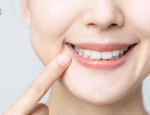 Usura dentale cause e rimedi